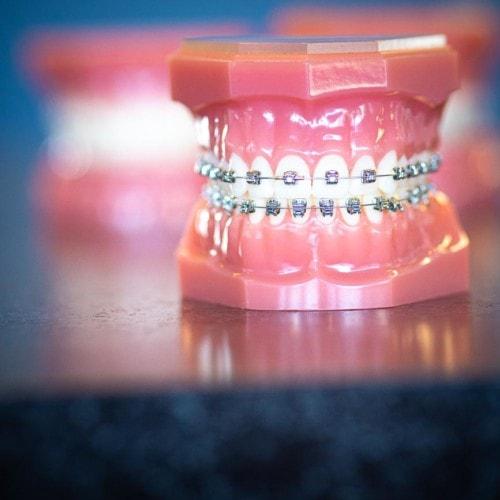 HWH Technology New 13 1 500x500 - Advanced Metal Braces   Topeka Orthodontist - HWH Orthodontics
