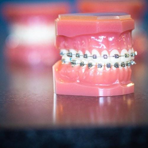 HWH Technology New 14 1 500x500 - Advanced Metal Braces   Topeka Orthodontist - HWH Orthodontics
