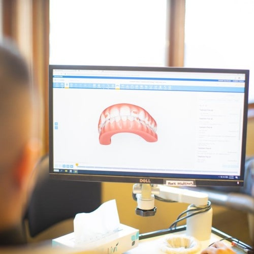 HWH Technology New 5 500x500 - Common Orthodontic Problems & How To Treat Them