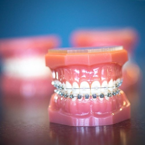HWH Technology New 7 500x500 - Clear Braces & Ceramic Braces | Topeka Orthodontist - HWH Orthodontics