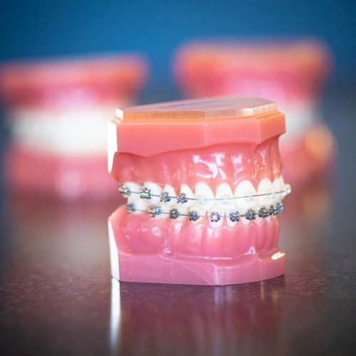 HWH Technology New 8 500x500 - Clear Braces & Ceramic Braces | Topeka Orthodontist - HWH Orthodontics