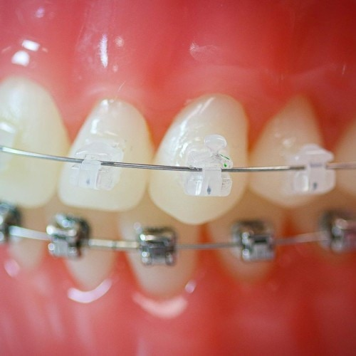 hwh typodonts new 10 500x500 - Clear Braces & Ceramic Braces | Topeka Orthodontist - HWH Orthodontics