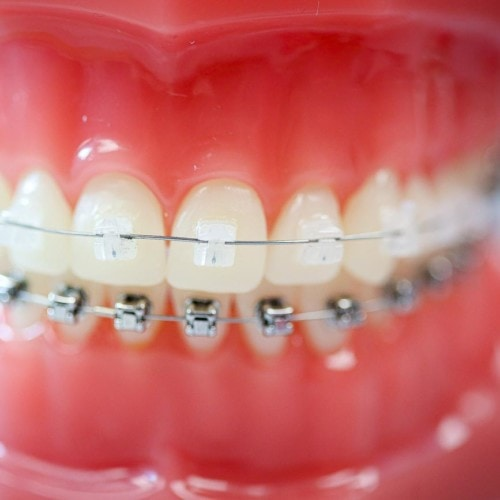 hwh typodonts new 18 500x500 - Clear Braces & Ceramic Braces | Topeka Orthodontist - HWH Orthodontics