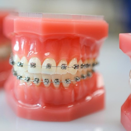 hwh typodonts new 2 500x500 - Advanced Metal Braces | Topeka Orthodontist - HWH Orthodontics
