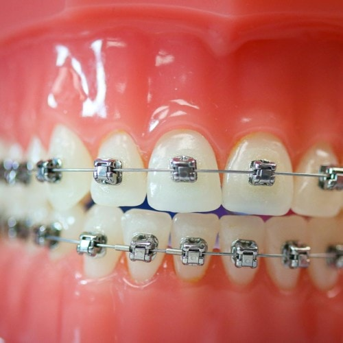 hwh typodonts new 4 500x500 - Advanced Metal Braces | Topeka Orthodontist - HWH Orthodontics